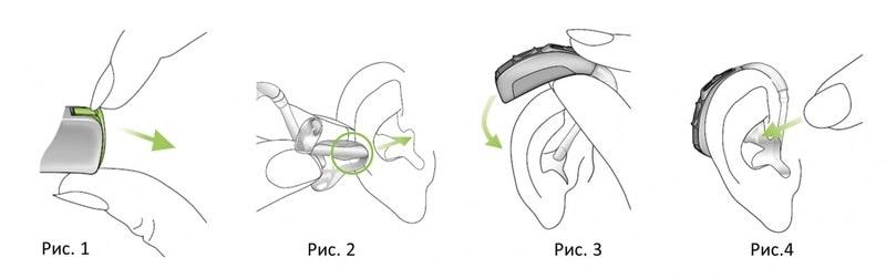 Как надеть слуховой аппарат