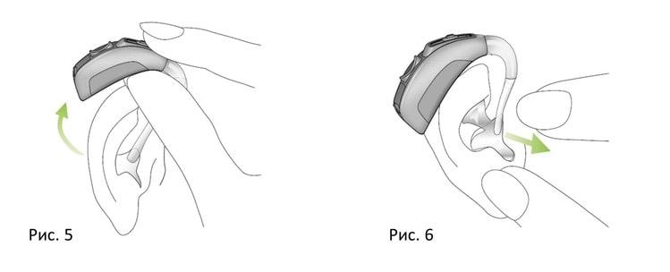 Как снять слуховой аппарат